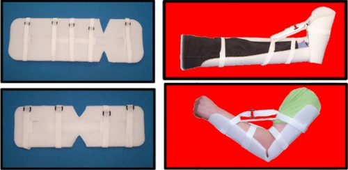 Ankles and Elbows Splint